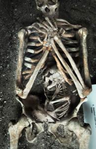 szkielet duńskiej kobiety zmarłej w 8 mcu ciąży z powodu kamieni nerkowych