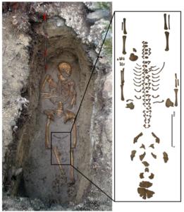 """szczątki matki i płodu - przykład """"porodu pośmiertnego"""""""
